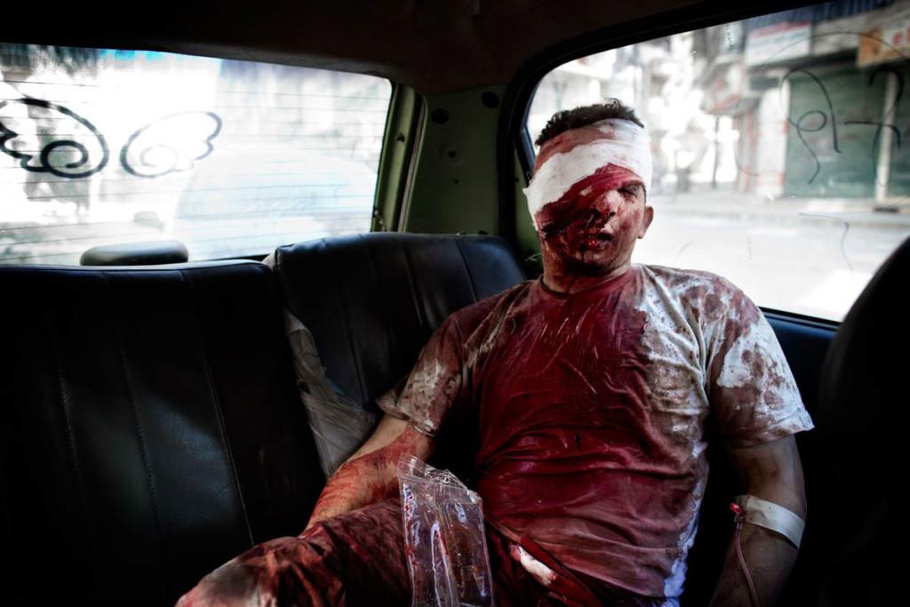 Sjukhuset har inte rätt utrustning och måste skicka vidare den skadade mannen till sjukhus som kontrolleras av regimen. Foto: NICLAS HAMMARSTRÖM (oktober 2012)