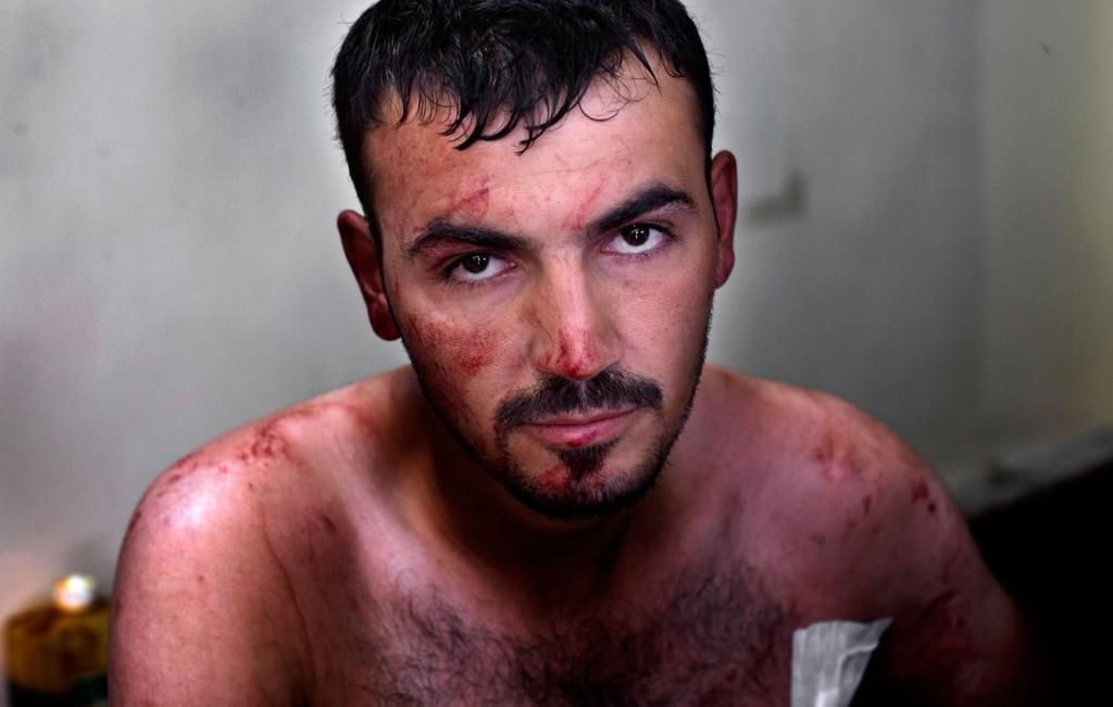En kula har träffat Muhammed i bröstet, men den här gången hade han tur. Kulan gick rakt igenom och han kunde lämna sjukhuset efter bara någon timme. Foto: NICLAS HAMMARSTRÖM