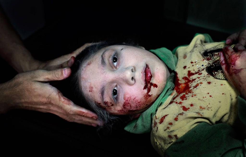 Dania Kilsi, 11, behandlas för splitterskador. Hon och hennes yngre syskon, Zaid och Fatima, lekte utanför hemmet när en granat slog ner. Foto: NICLAS HAMMARSTRÖM